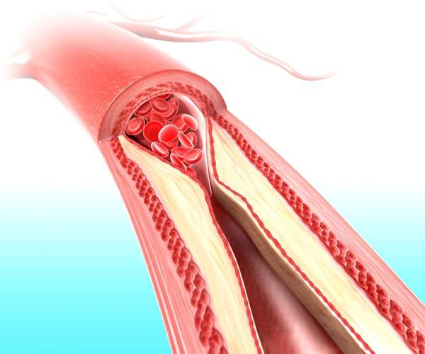 MUDr. Lukáš Zlatohlávek, Ph.D.: Zvýšená hladina cholesterolu dlouho nebolí, a proto ji lidé podceňují