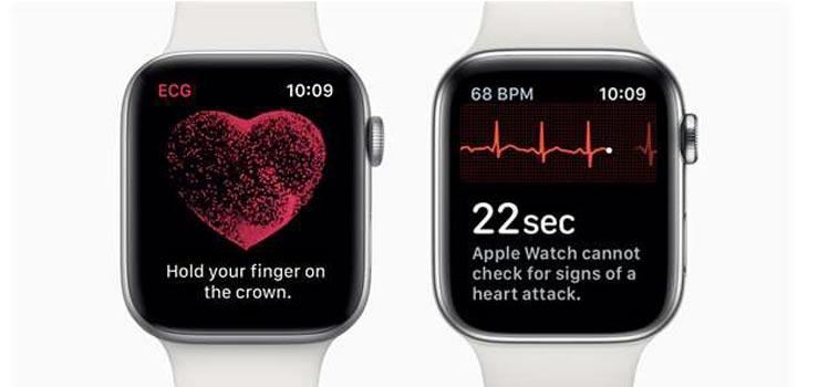 Apple watch - srdeční tep a EKG